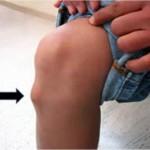 dolor rodillas1